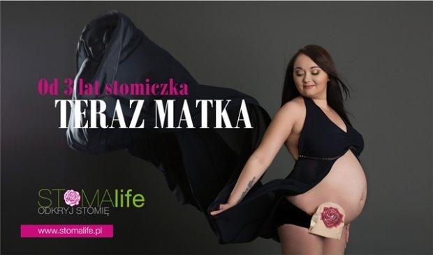 z20127081Q,Roksana-ze-Swietochlowic-ma-stomie-i-zdecydowala-s